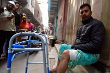 Delhi Riots: 'The Bullet That Hit Me Didn't Have Any Religion'