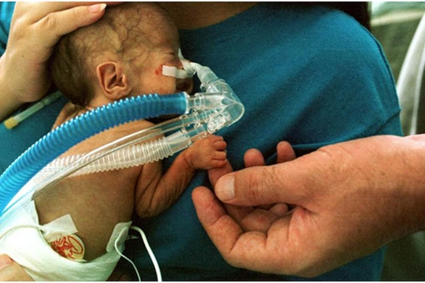 No Formula Food For Premature Babies, They Too Need Mother's Milk: Study