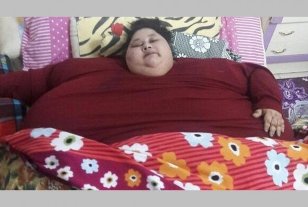 Former World's Heaviest Woman Eman Ahmed Dies In Abu Dhabi Due To 'Health Complications'