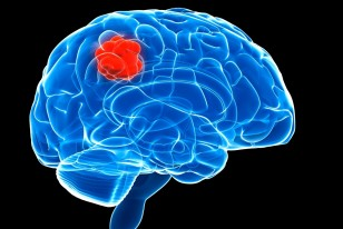 New Drug Shows Promise In Halting The Spread Of Brain Cancer