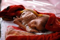 85,000 Children Died Of Malnutrition In Three Years In Yemen: Report