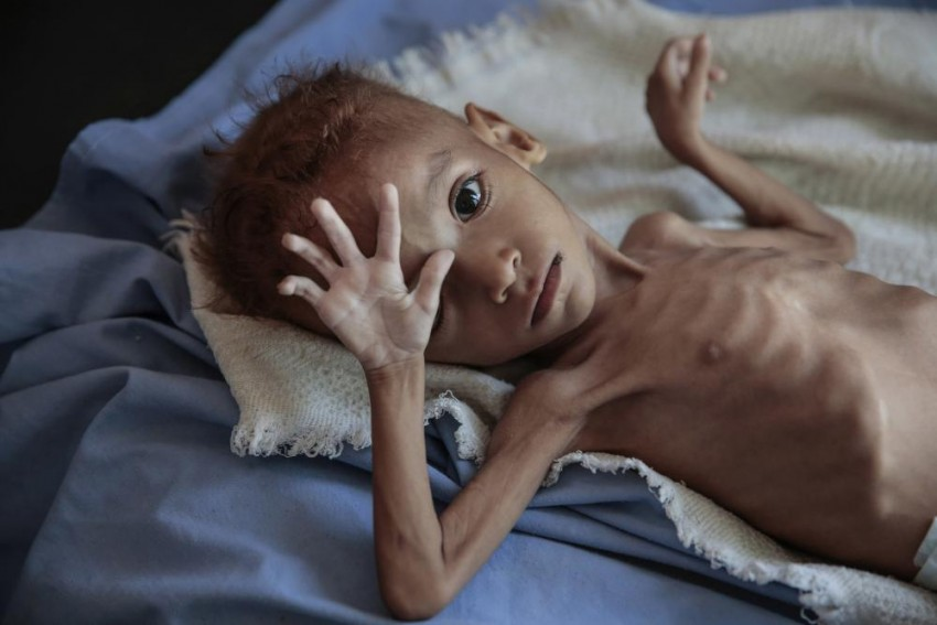 War-Torn Yemen Is Today A Living Hell For Every Child: UN