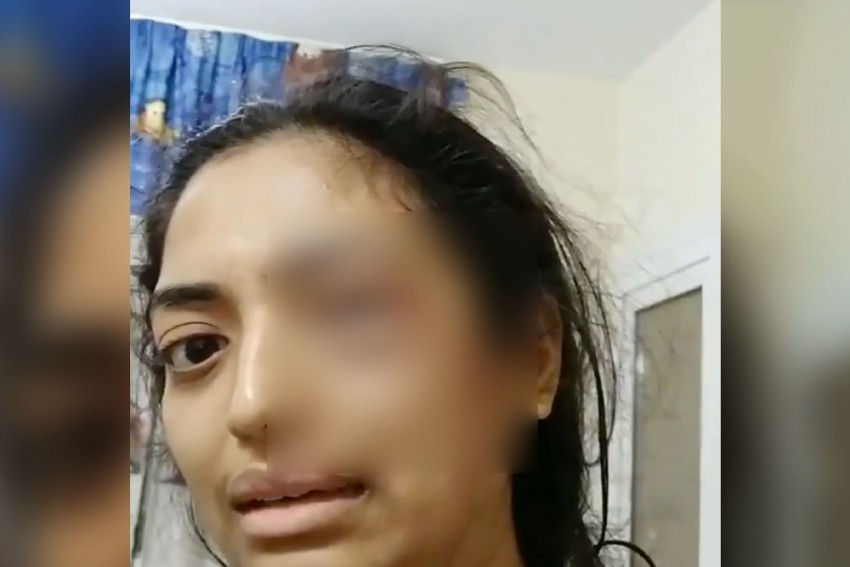 Indian Man Arrested In UAE After Wife Posts Video With Bleeding Eye Asking For Help