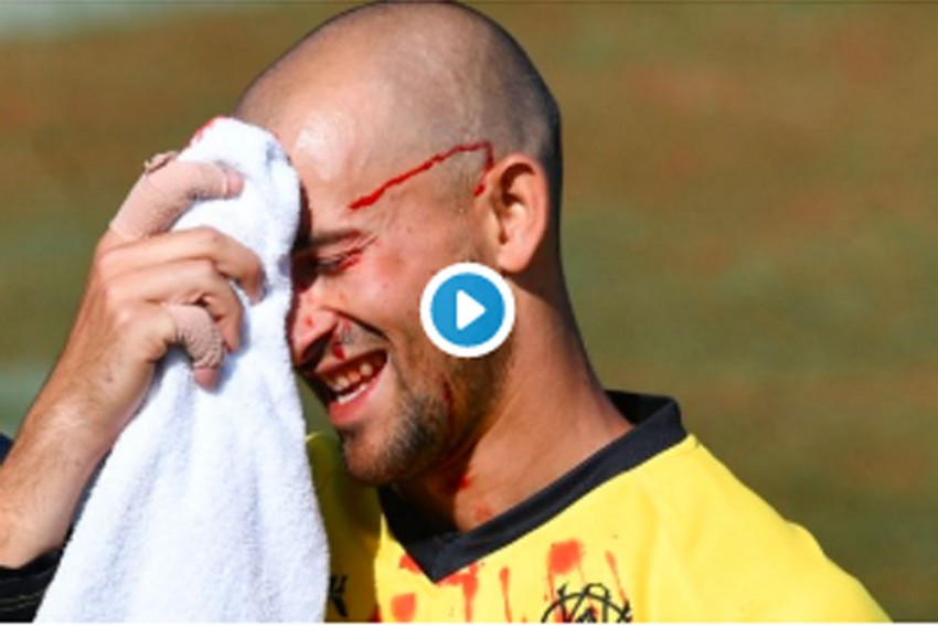 Oh, Brother! Dropping Sibling Proves Costly For Australia Cricketer Ashton Agar, Suffers Laceration - WATCH
