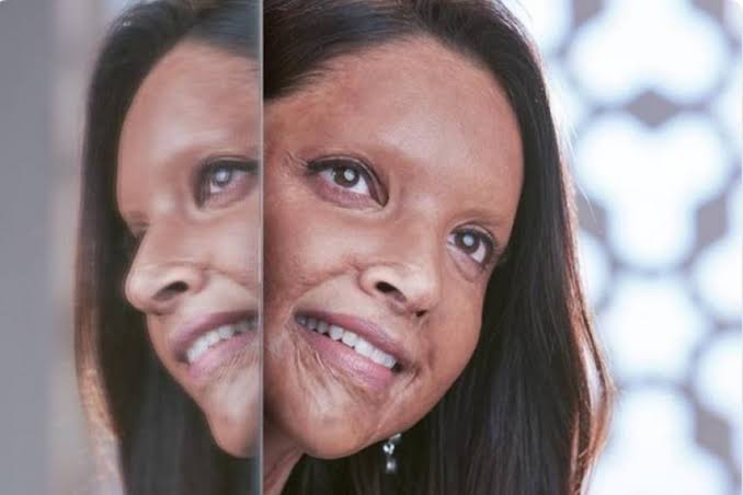 Deepika Padukone Steps Out Of Comfort Zone With 'Chhapaak' And She Won't Regret It