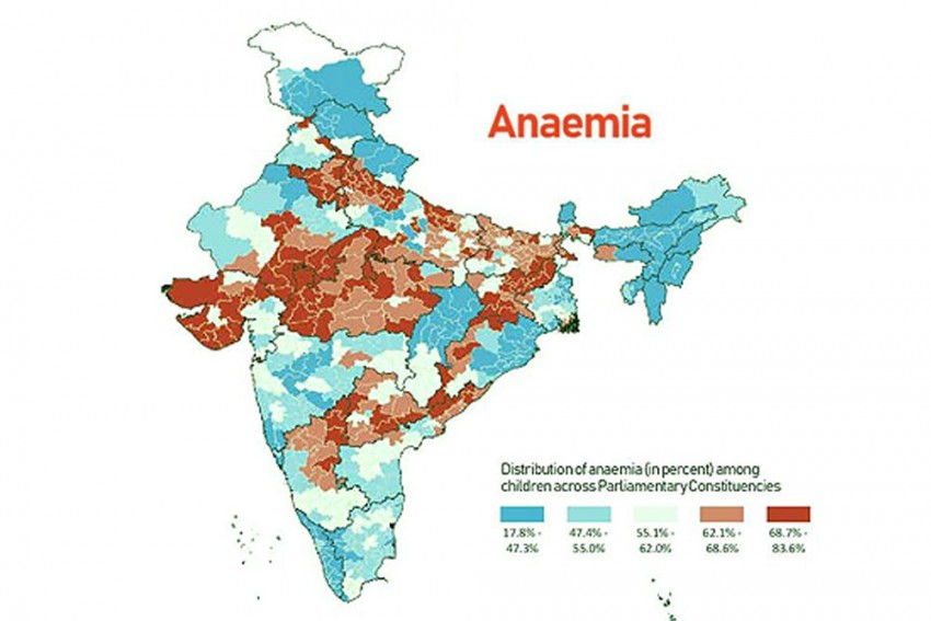 'Very High Burden' Of Child Malnutrition Seen In UP, Rajasthan, MP, Bihar, Gujarat, Jharkhand, Says Harvard Study