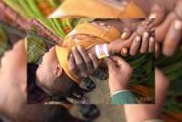 Madhepura, Measles, Musahars And Malnutrition