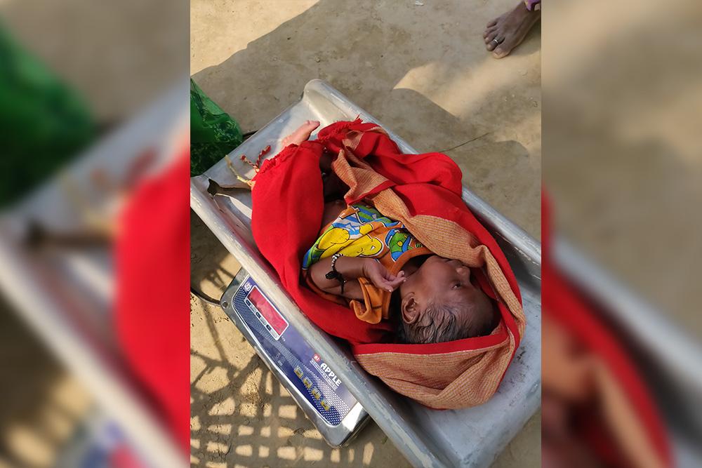Overcoming Hurdles In Treating Varanasi's Malnourished Children