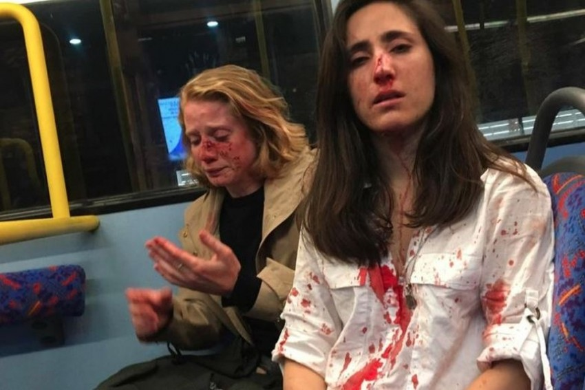 Men Attack Lesbian Couple In London For Refusing To Kiss For Them