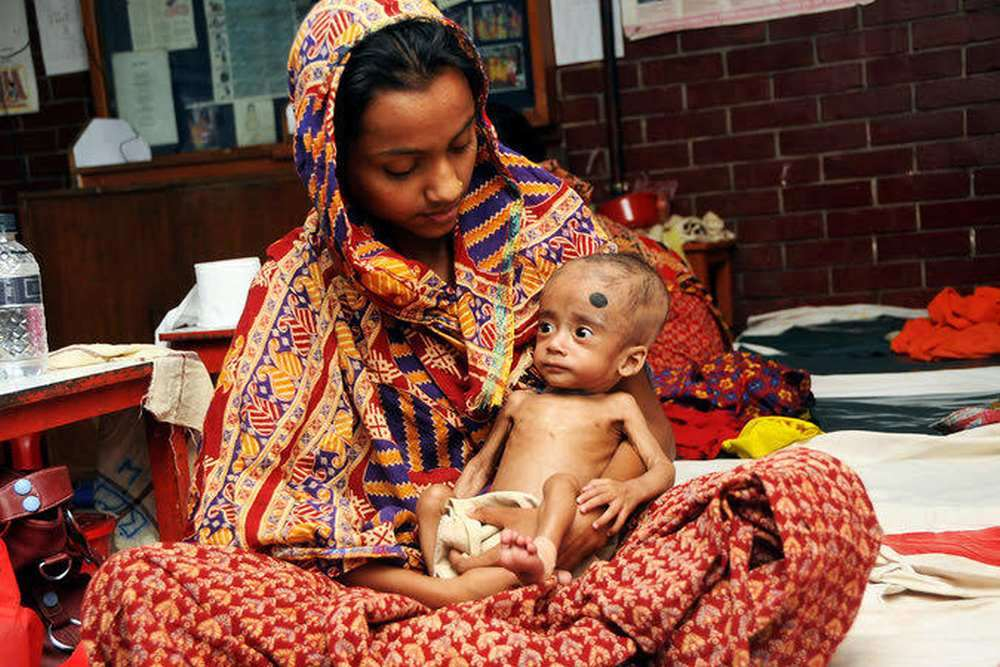 Hot Off The Lab Bench: Miracle Food For Malnourished Children