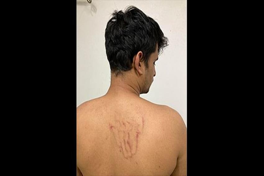 Delhi Police Detains, Assaults Journalist For Four Hours