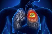 Tips To Cut Lung Cancer Risk