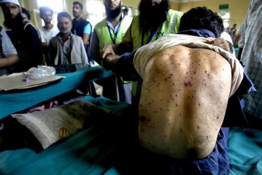 'As Long As There's Unruly Mob...': J&K HC Refuses To Ban Use Of Pellet Guns