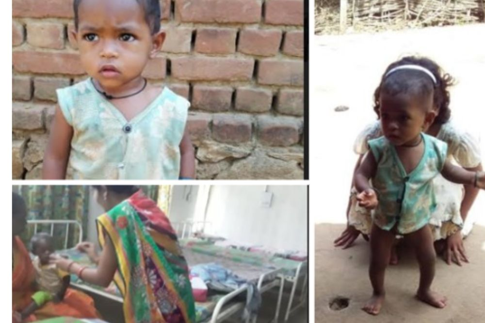 How Timely Nutrition Saved This Little Girl's Life