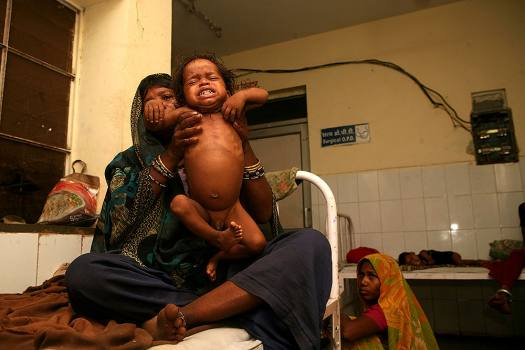 The Challenge Of Acute Malnutrition