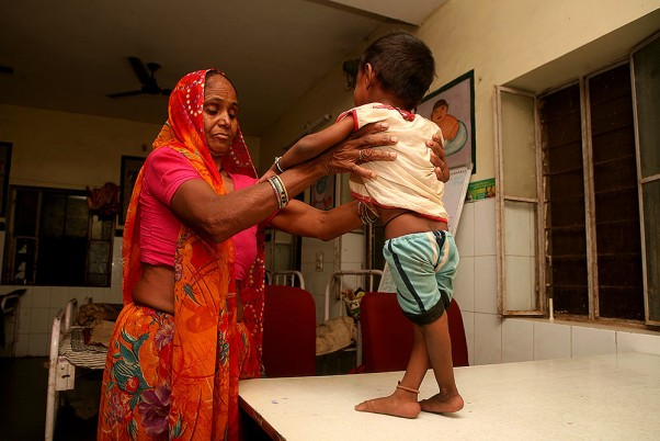 New Programme To Address Malnutrition In Rajasthan