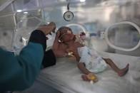 Over 2 Million Yemeni Children May Starve In 2021, 1 in 6 Children At Risk Of Death: UN