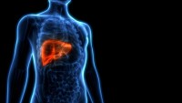 How To Revert A Grade 2 Fatty Liver To A Normal And Healthy One