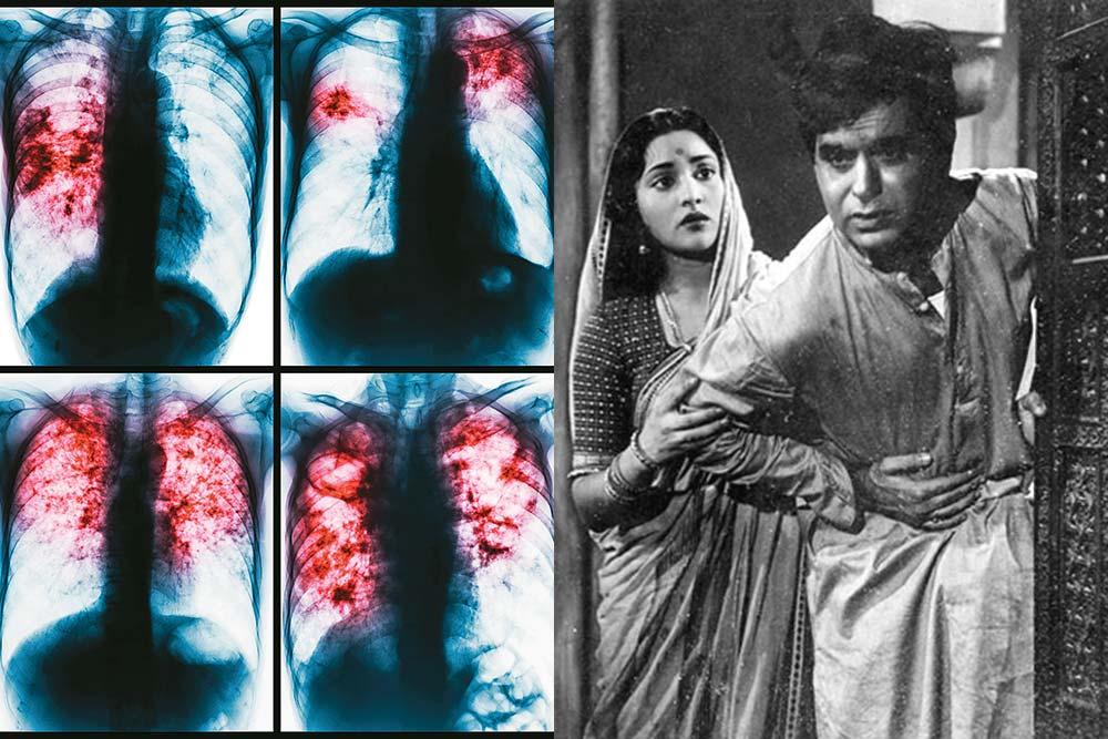 Need Lungs To Choke TB
