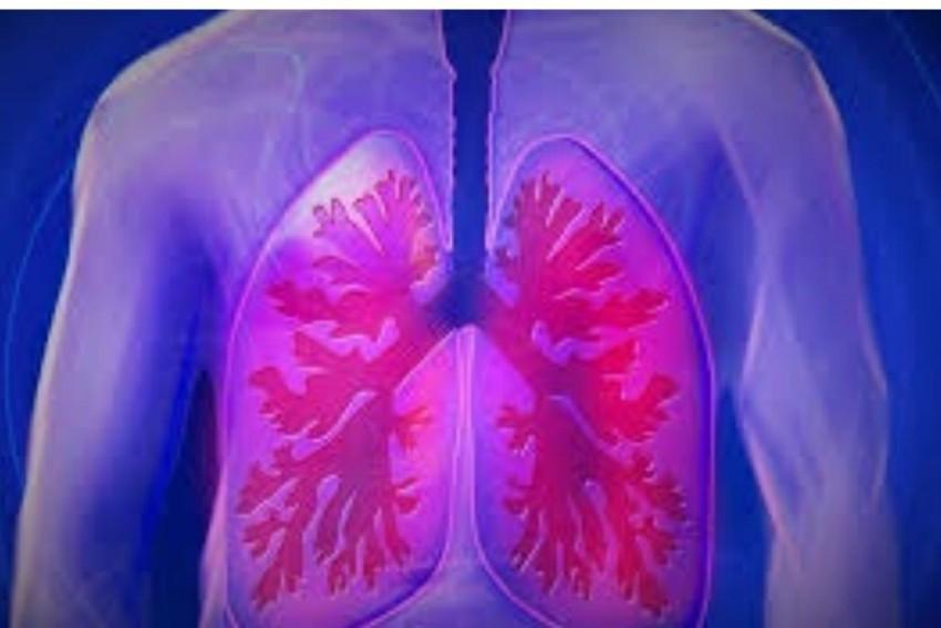 Delta Plus Variant Of Coronavirus Has More Affinity For Lung Tissues: NTAGI Chief