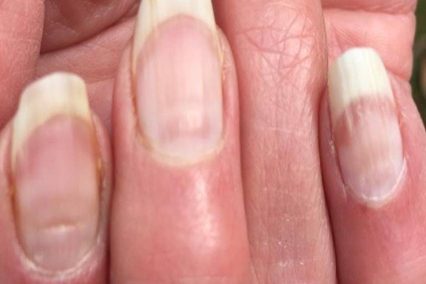 Discoloured Nails Could Be A Sign That You Have Had Covid: All You Need To Know