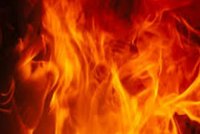 UP: Upset Over 'Non-Payment' Of Salary To Father, Youth Sets Himself Ablaze