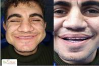 Dental Implants In India, A 22-Year- Boy Chewing Food For The First Time. Dr Rohit Yadav, Haident